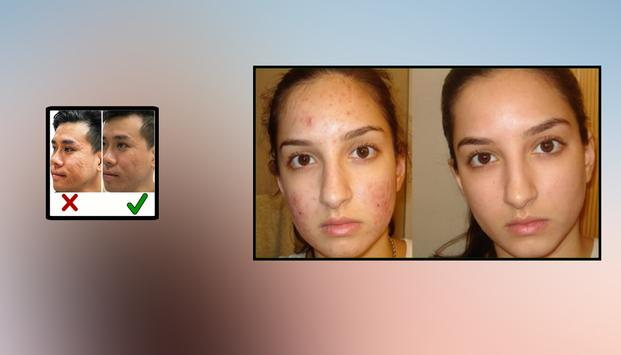 Acne Scar Removal Home Remedies screenshot 1