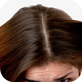 Dandruff Home Remedies icon