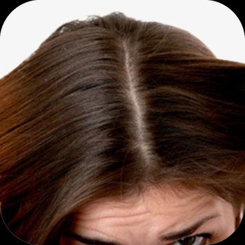 Dandruff Home Remedies screenshot 1