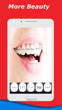 Braces Teeth Selfie Camera apk screenshot