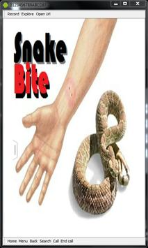 Snake Bite Emergency Tips poster