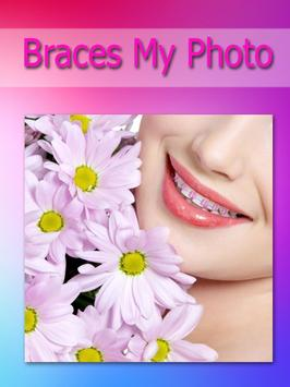 Brace my Photo teeth braces apk screenshot