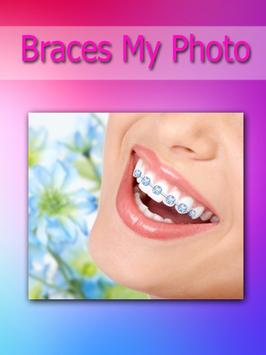 Brace my Photo teeth braces poster
