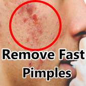 How to Get Rid of Pimples Fast icon