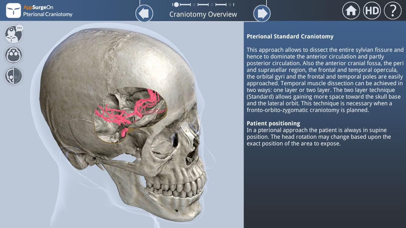 Pterional Craniotomy For Android Apk Download