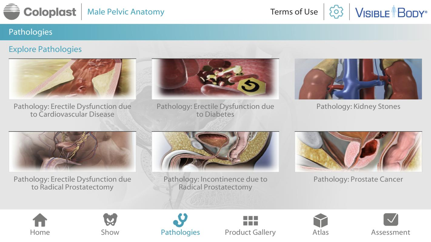 Pelvic Anatomy for Coloplast for Android - APK Download