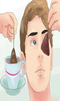 علاج الهالات السوداء حول العين poster