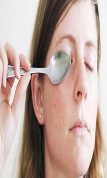 علاج الهالات السوداء حول العين screenshot 1