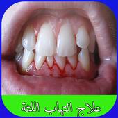 علاج التهاب اللثة biểu tượng