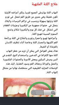 علاج التهاب اللثة bài đăng