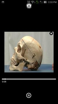 EOC Cranium screenshot 4