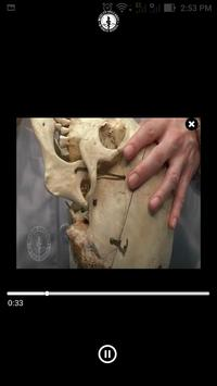 EOC Cranium screenshot 6