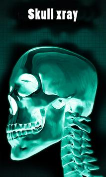 X-ray body scanner camera simulator screenshot 5