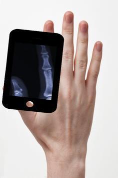 X-ray Hand Simulated apk screenshot