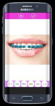 Top Design Braces teeth apk screenshot