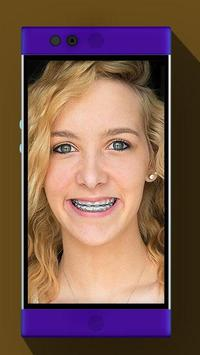 Real Braces Booth HD Studio poster