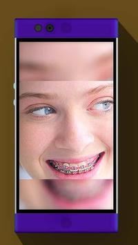 Real Braces Booth HD Studio apk screenshot