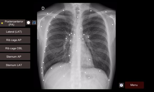 Radiographic Anatomy X-Ray APK Download - Free Medical APP for ...