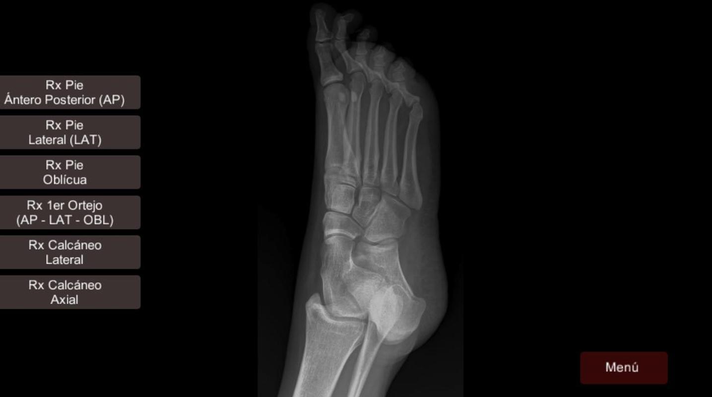 Anatomía Radiológica Descarga APK - Gratis Medicina Aplicación para ...