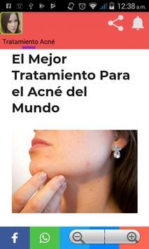Como quitar el acné poster