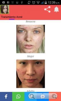 Como quitar el acné screenshot 7