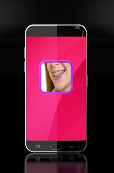 braces - brace teeth screenshot 6