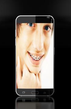 braces - brace teeth screenshot 8