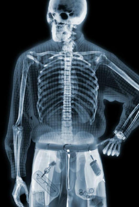 X-Ray Body Simulator Prank 1