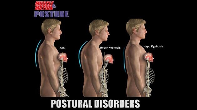 Muscle and Motion POSTURE apk screenshot