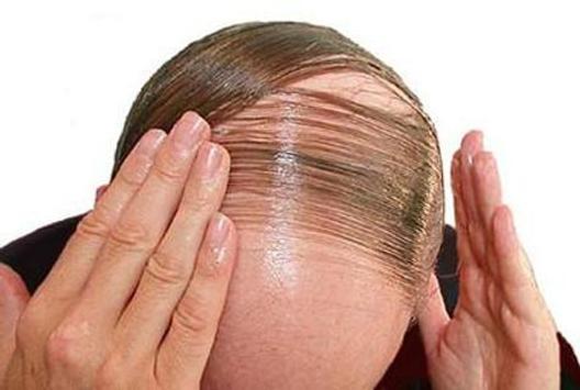 Hair Fall Control poster