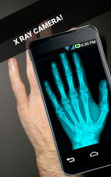 Body XRay Scanner Camera Prank screenshot 3