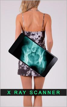 Body XRay Scanner Camera Prank poster