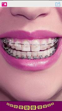 Cute Braces Teeth Editor screenshot 3