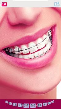Cute Braces Teeth Editor poster