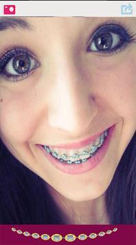 Cute Braces Teeth Editor screenshot 2