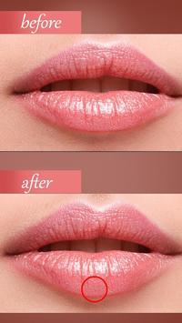 botox lips editor face shape poster