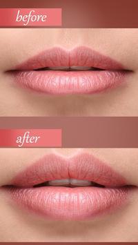 botox lips editor face shape screenshot 1