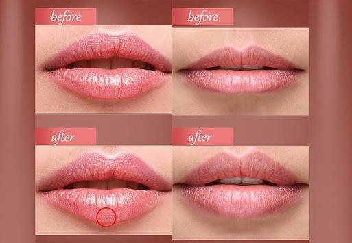 botox lips editor face shape screenshot 4