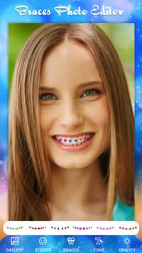 Braces Photo Editor screenshot 2