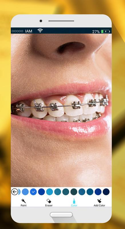 sweet braces teeth maker apk download free photography app for