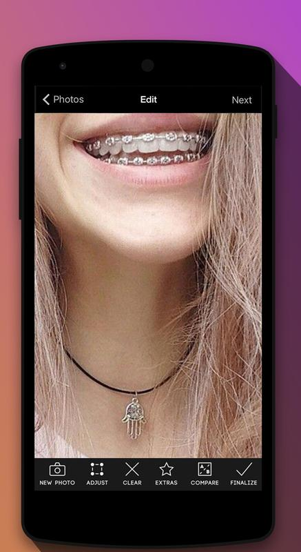 braces teeth booth camera apk download free photography app for