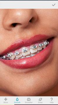 Sweet Braces Teeth Maker screenshot 3