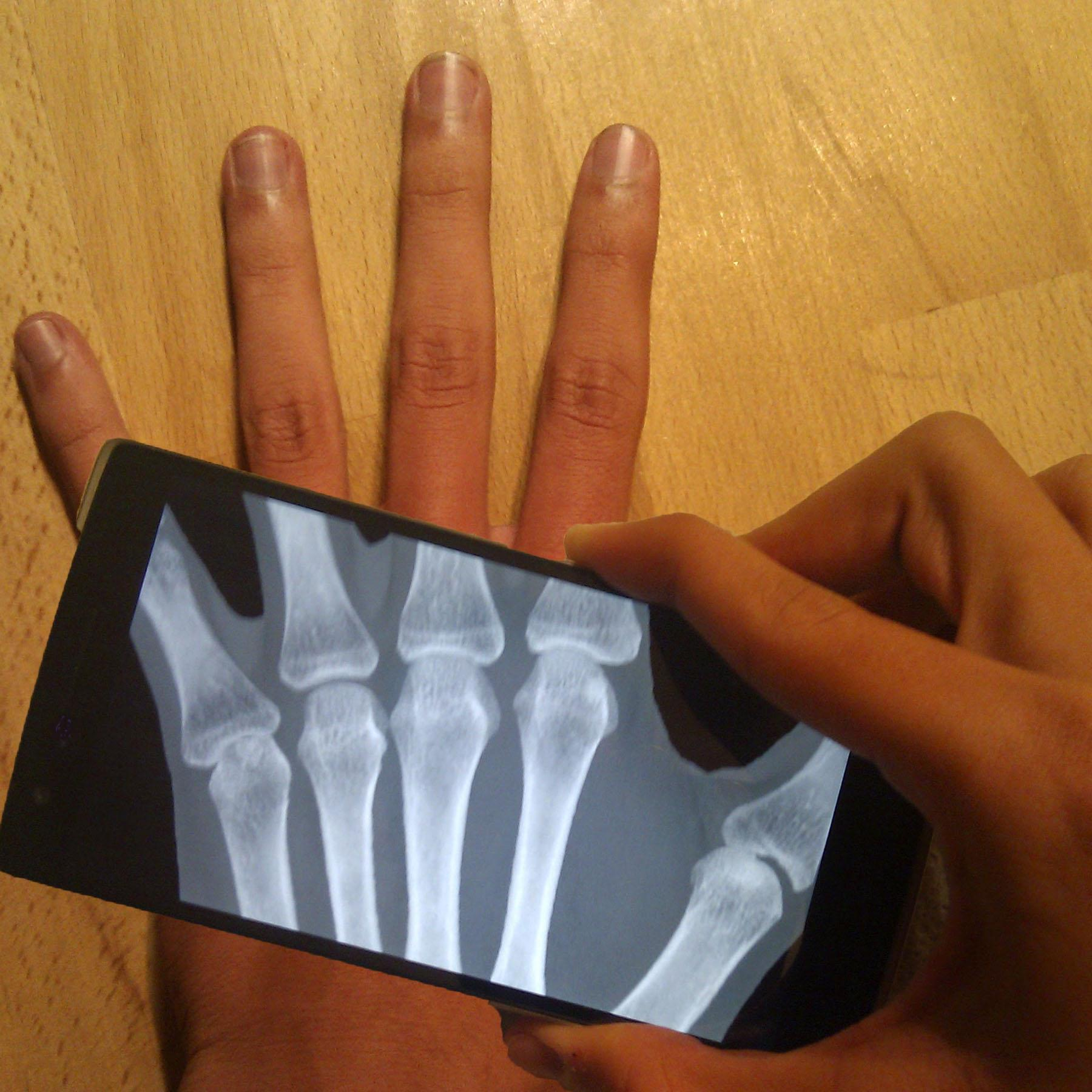 Ultimate X-Ray Scanner for Android - APK Download