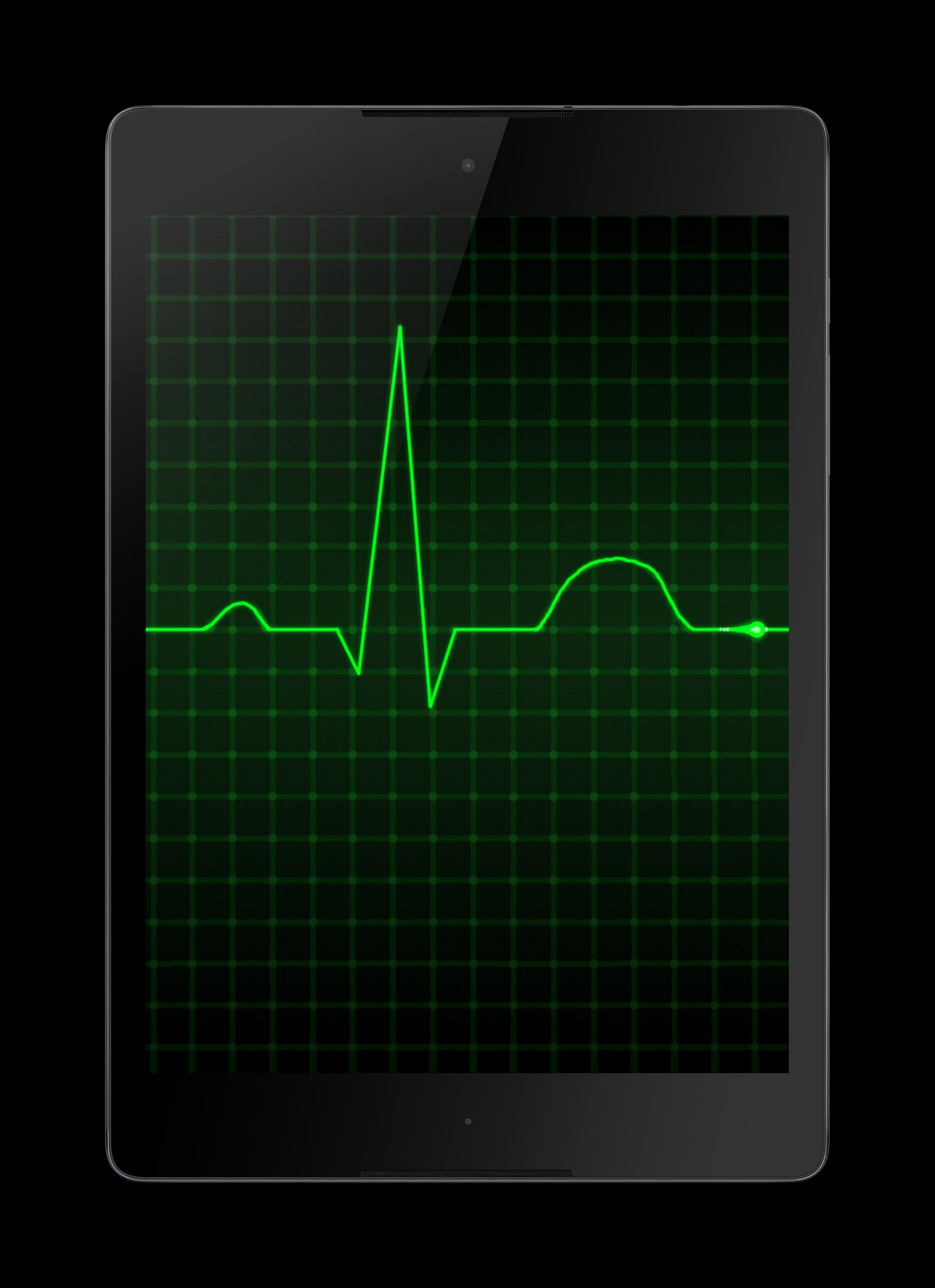 Iphone Ecg Wallpaper