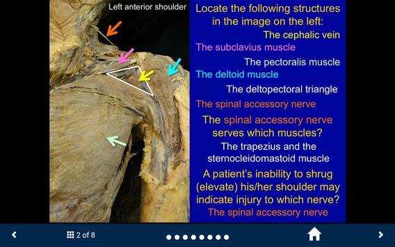 MSK Anatomy Lite - SecondLook screenshot 12
