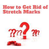 How To Get Rid Of Stretch Marks icon