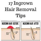 Ingrown hair removal icon
