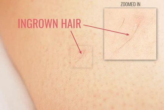 Ingrown hair removal screenshot 1