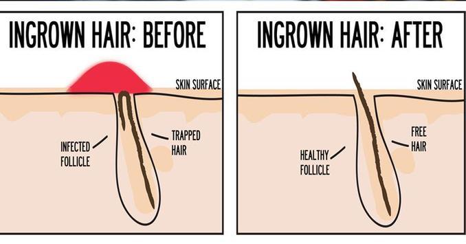 Ingrown hair removal screenshot 2