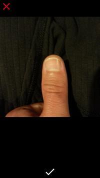 A.I Diagnose Skin (DEMO) screenshot 1